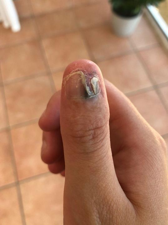 Lerágta a körmét Courtney Whithorn, rákos lett, amputálni kellett /Fotó: Profimedia-Reddot