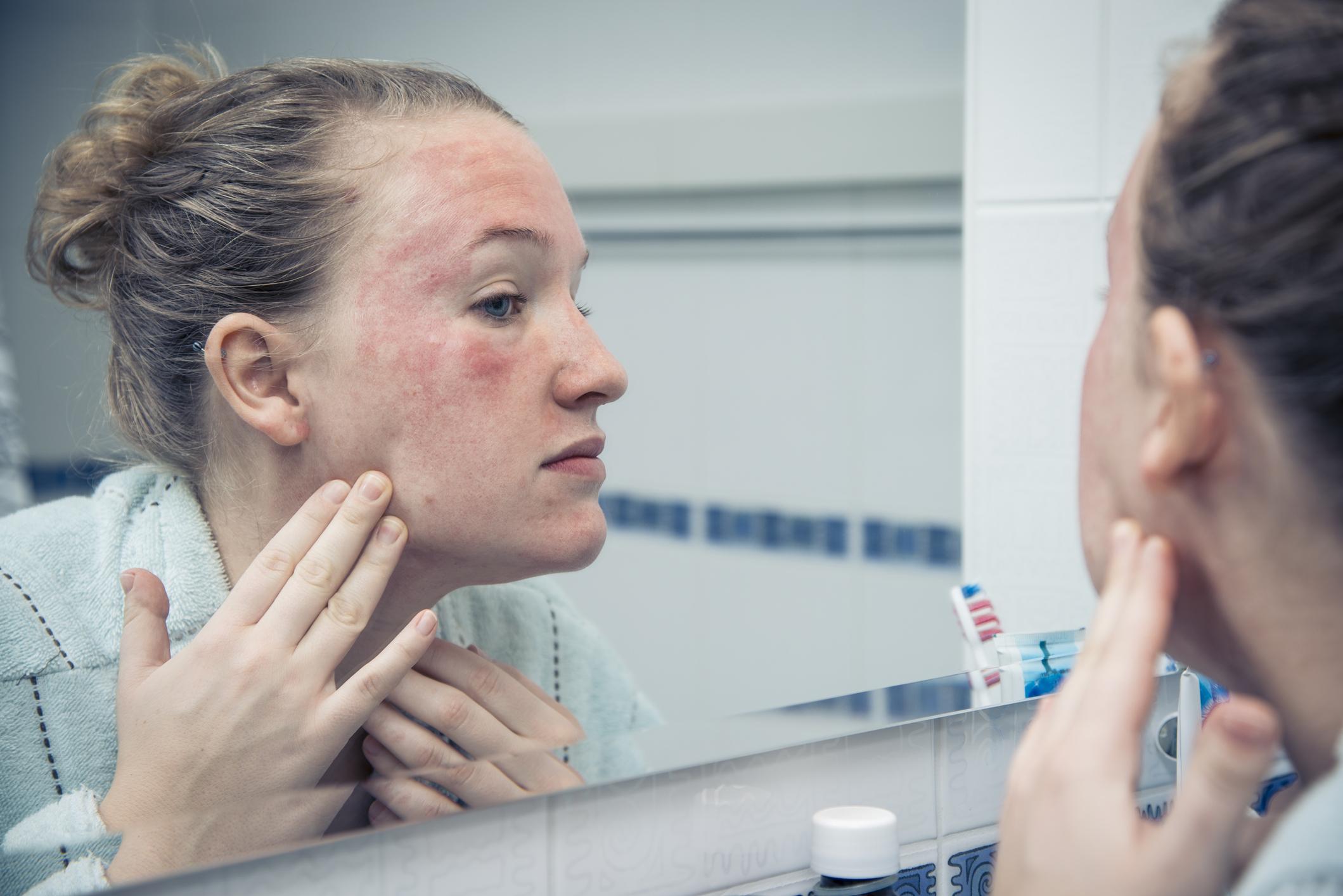 allergiás ekcéma krém milyen gyógyszerek a legjobbak a pikkelysömörhöz
