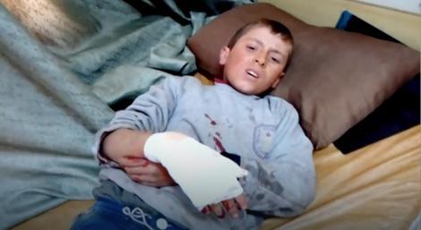Povređena deca u bombardovanju