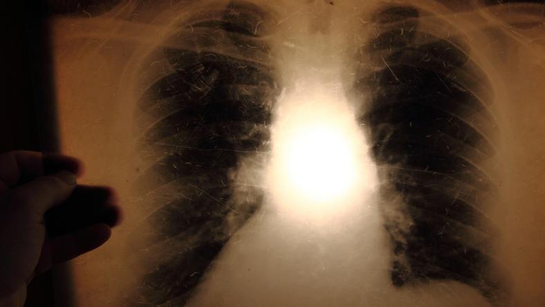A Tbc a tüdőt támadja meg, röntgennel kimutatható / Fotó: Northfoto