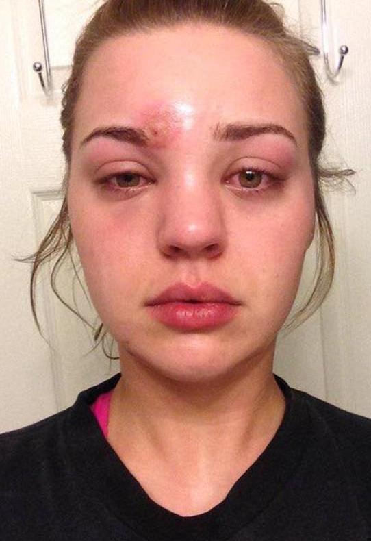 Posle samo sat vremena, lice joj se deformisalo