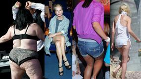 Cellulit - zmora kobiet czy drobna niedoskonałość?