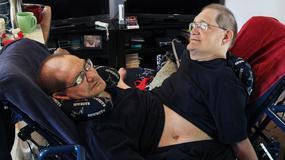 Ronnie i Donnie - najdłużej żyjące bliźniaki syjamskie na świecie