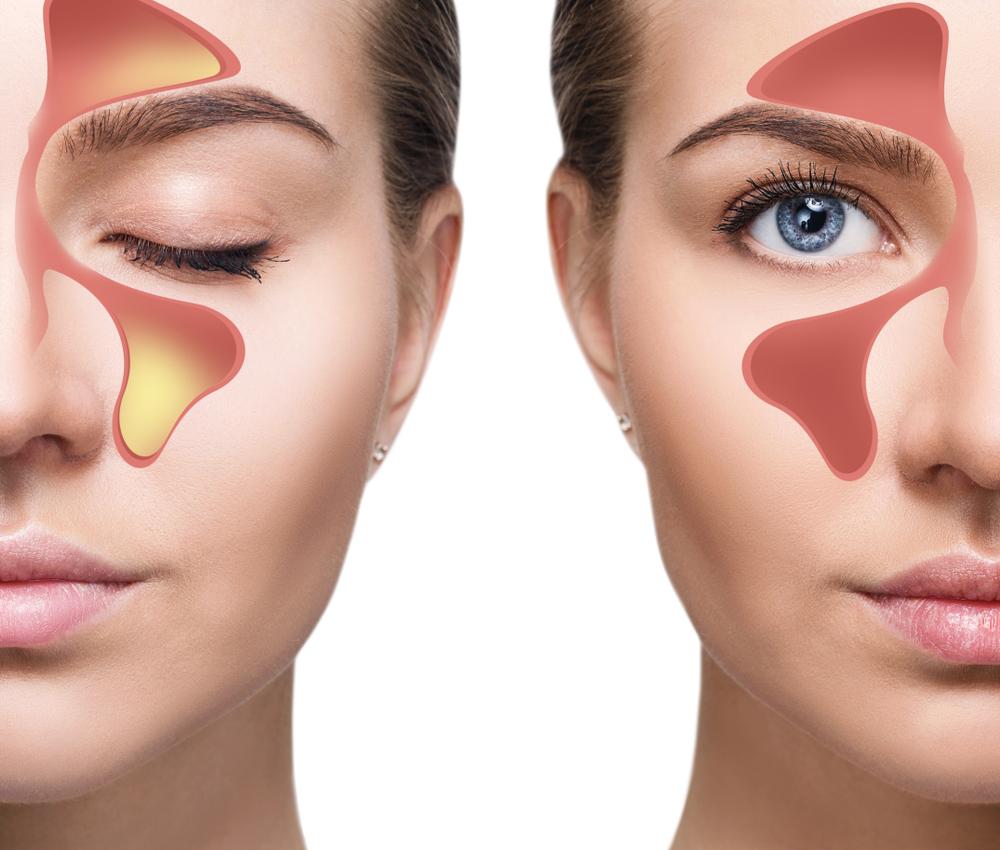 kronikus arcureg gyulladas ízületi fájdalom mentális okai