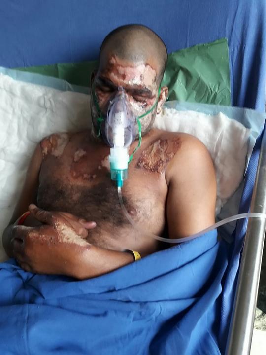 Szerelmehalott férje identitását akarta ellopni az a férfi, aki borzalmas égési sérüléseket szerzett, miután savval érintkezett.  / Fotó: Northfoto