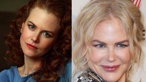 Nicole Kidman – gdy piękna, naturalna kobieta zmienia się w porcelanową lalkę