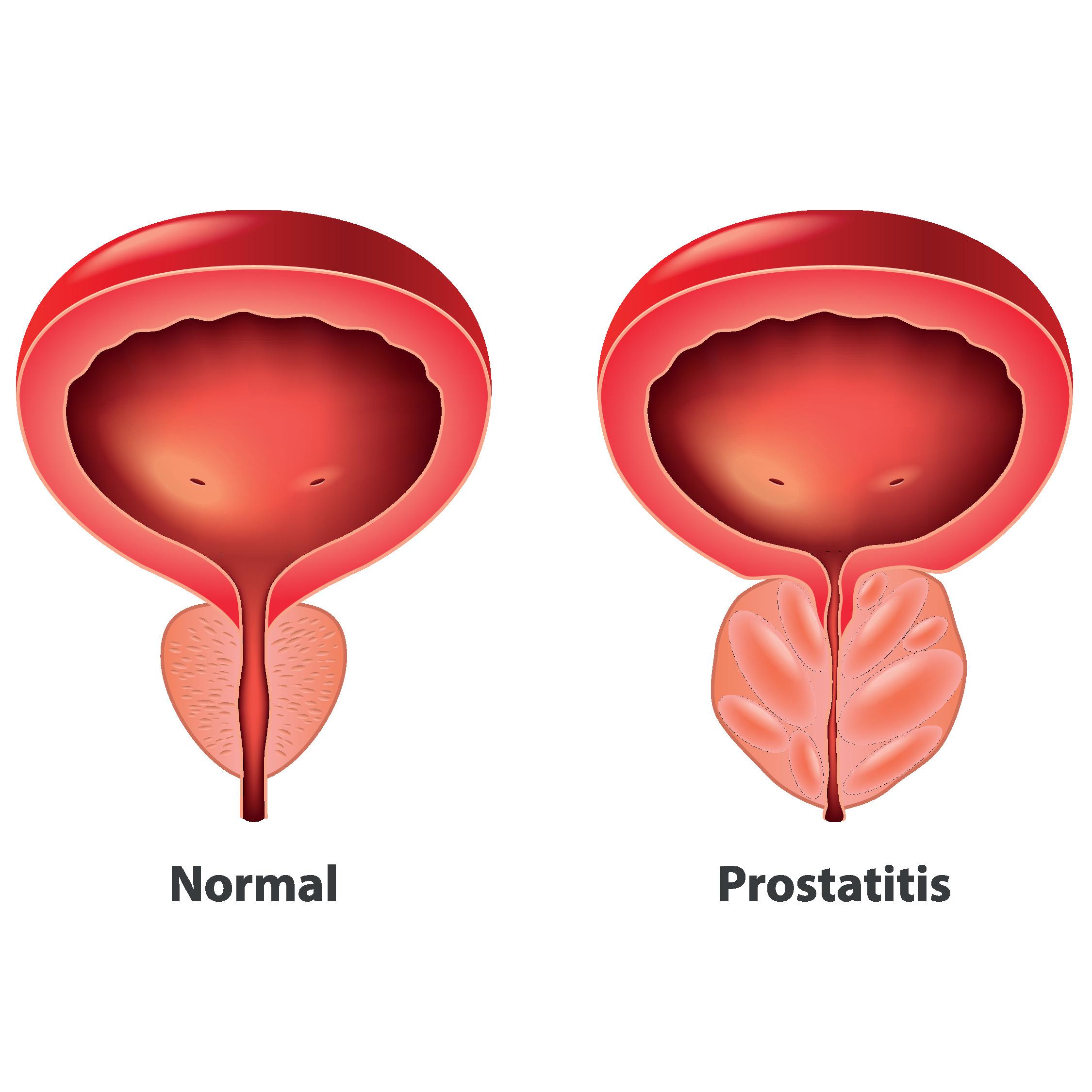 Bugyi a prosztatitis kezelésére