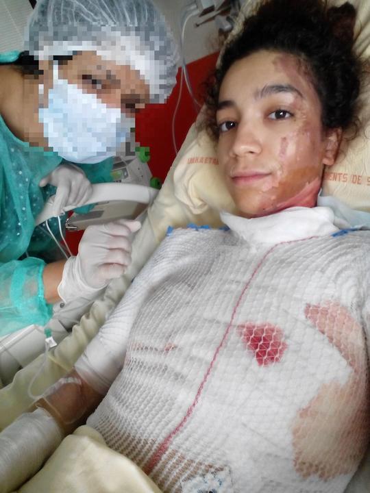 A lány testének 15 százaléka megégett / Fotó: Northfoto