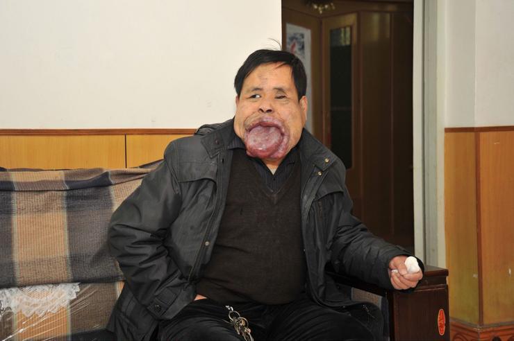 شخص لا يغلق فمه منذ 21 عاماً بسبب تضخم لسانه