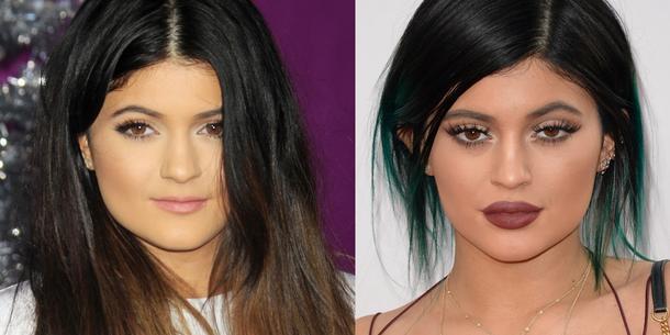 Kylie Jenner przyznała się do wypełniania ust