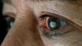 Google projektuje wstrzykiwane soczewki kontaktowe