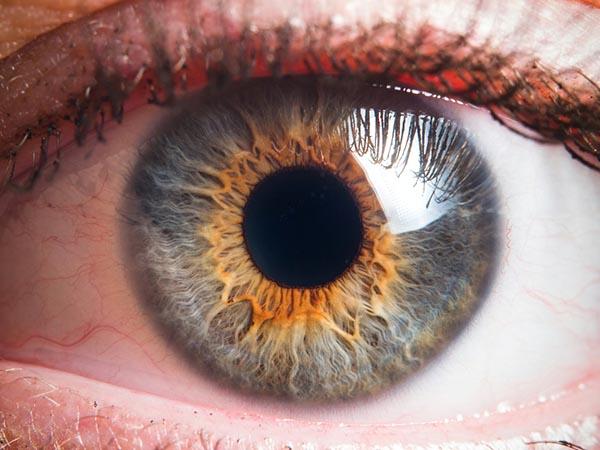 Ritka, de agresszív daganat a szem melanomája