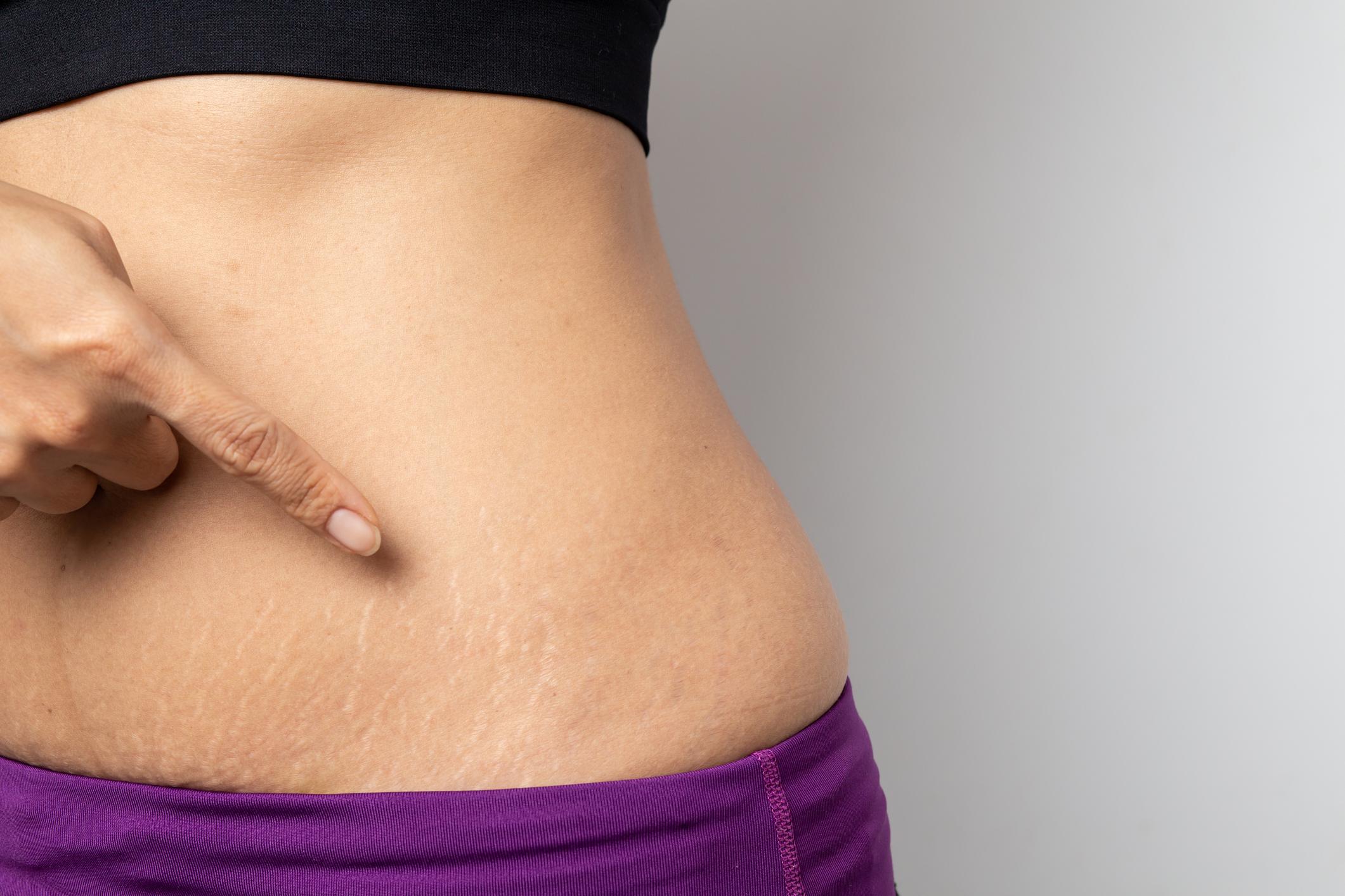 fogyás feloldva felülvizsgálat a fogyás legjobb módja 2 hét