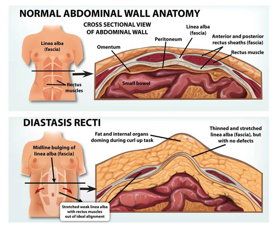 All about postpartum diastasis recti and how to get rid of it [Credit:  Burrell Education]