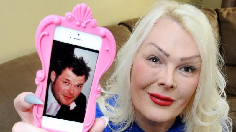 A férj átoperáltatta magát nővé / Fotó: Profimedia-Reddot