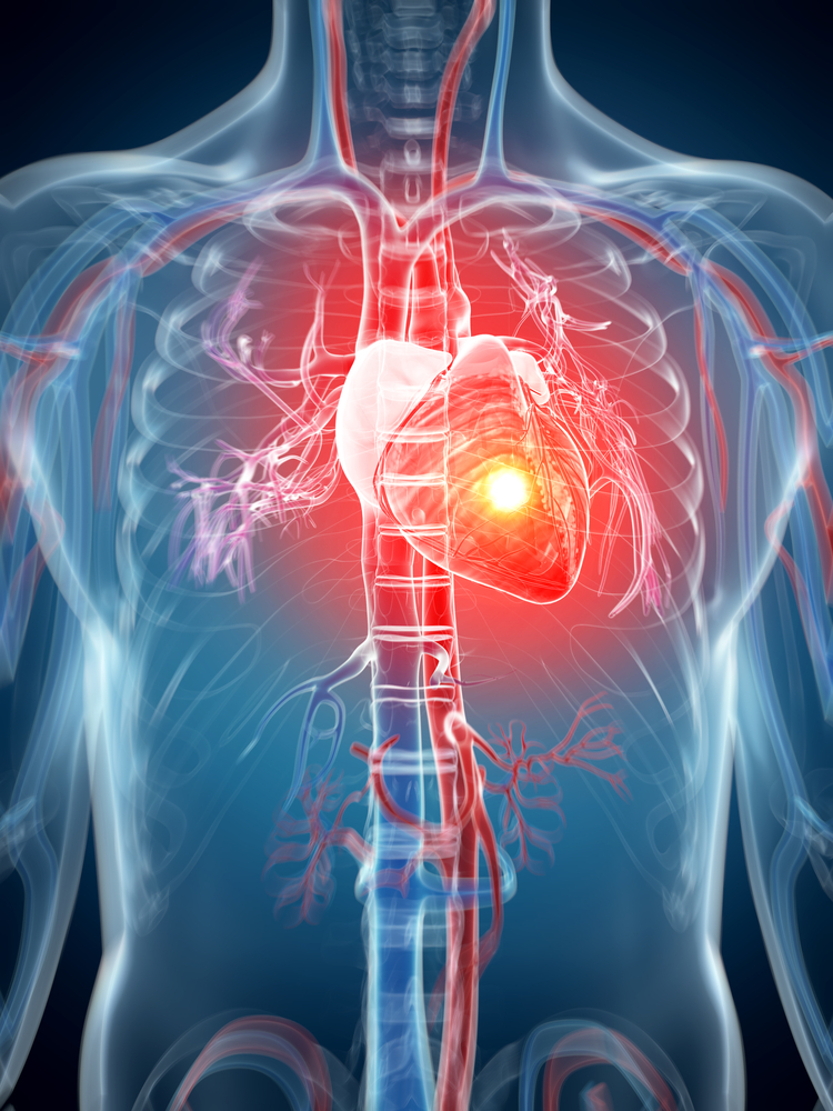 Odchudzanie osób z chorobami serca