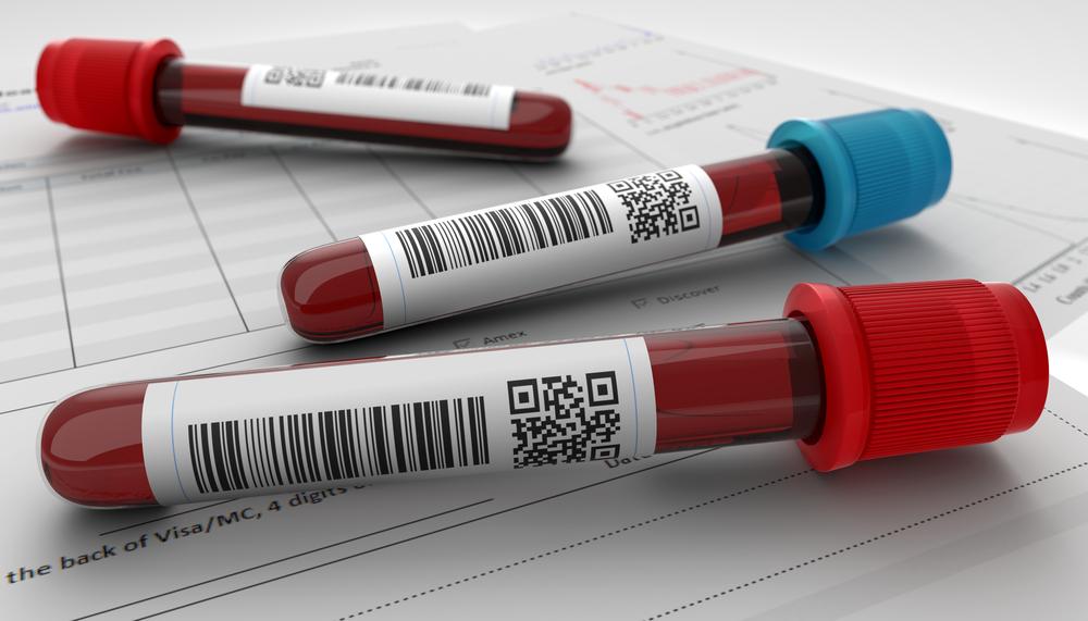 Tudományos áttörések: már ennyi minden megállapítható a vérvizsgálatból!