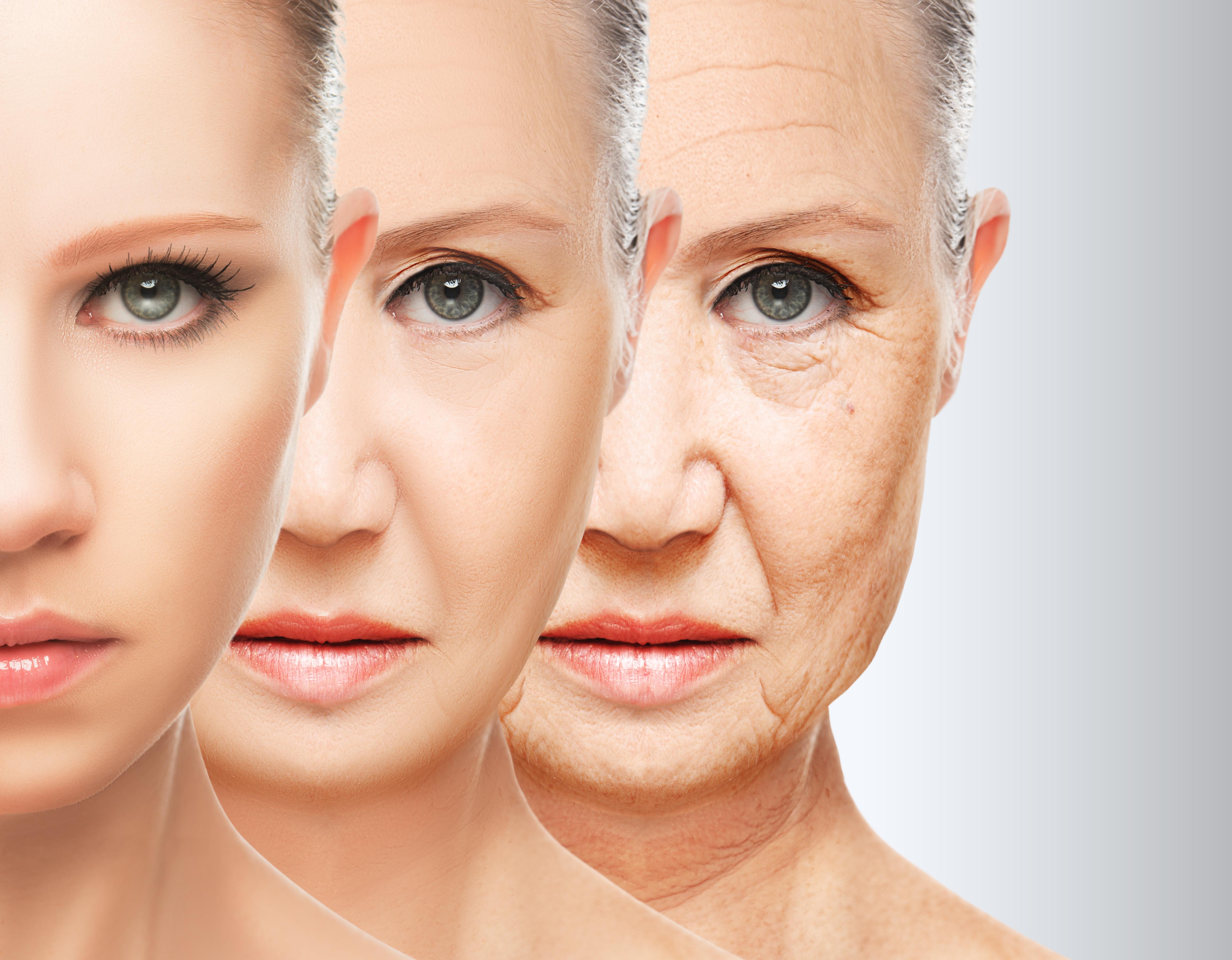 Các Phương pháp căng da mặt phổ biến hiện nay