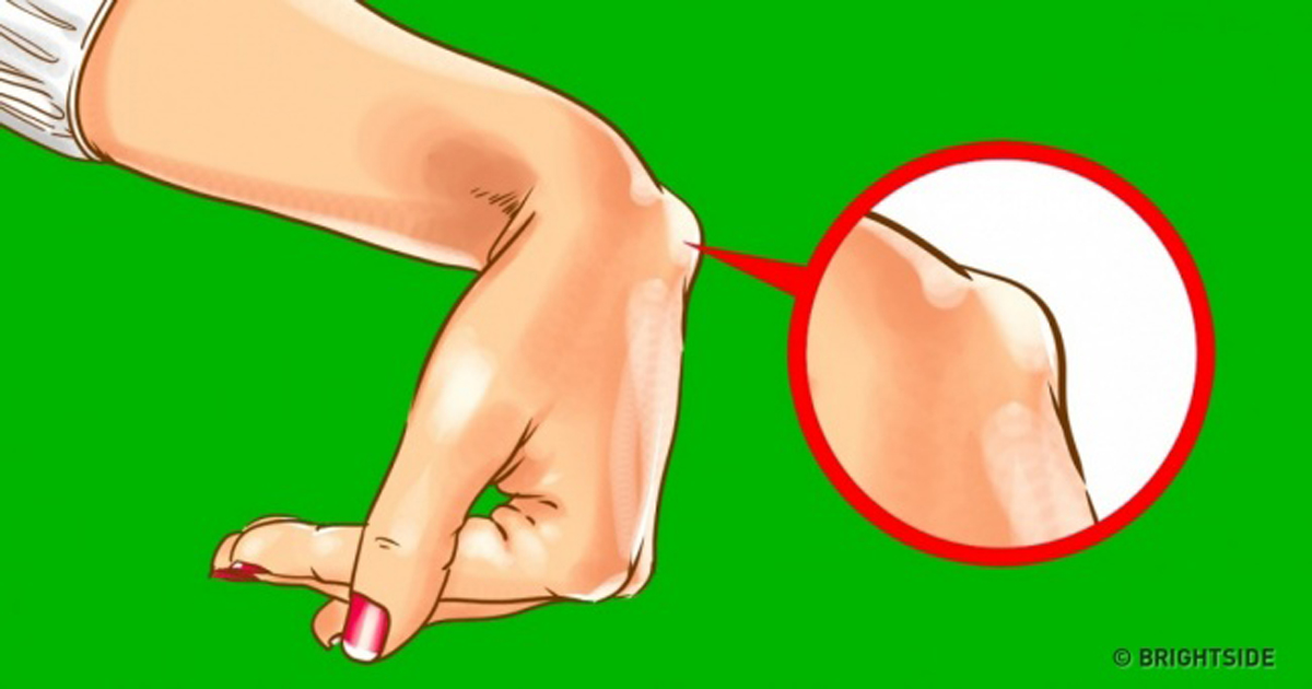 ízületi duzzanat a kar kezelésénél