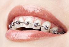 zębów - Eurodent. Gabinet dentyst... zdjęcie 5