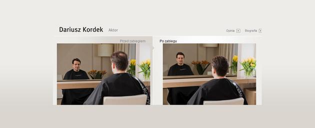 włosy suche - Klinika Handsome Men zdjęcie 10