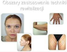 Więcej na stronie www.bellisana.pl