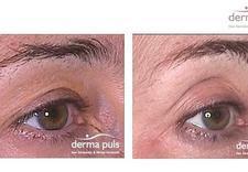 atopowe zapalenie skory - Derma Puls Centrum Dermat... zdjęcie 15