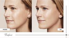 Laserowe zamykanie naczynek na twarzy