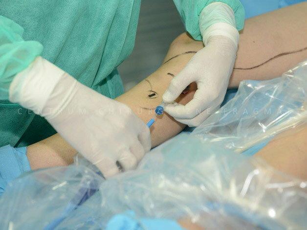 Leczenie żylaków metodą SVS (ablacja za pomocą pary wodnej), jest aktualnie  najnowocześniejszą i najmniej inwazyjną metodą leczenia niewydolnych żył.