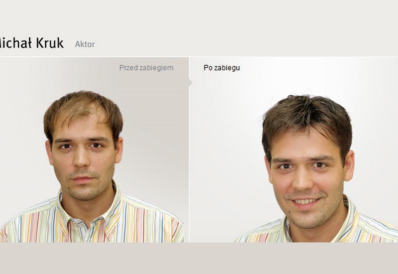 przeszczep włosów koszt - Klinika Handsome Men zdjęcie 7