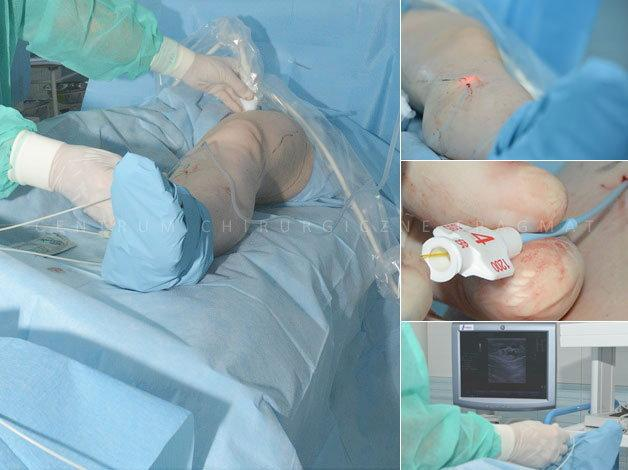 Laserowe operacje żylaków wykonujemy od marca 2006 roku. Zabieg wykonywany  jest w znieczuleniu miejscowym, pacjent  po zabiegu wraca do  domu.