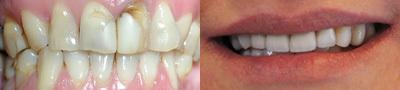 usługi stomatologiczne - EURODENTAL Centrum Stomat... zdjęcie 21