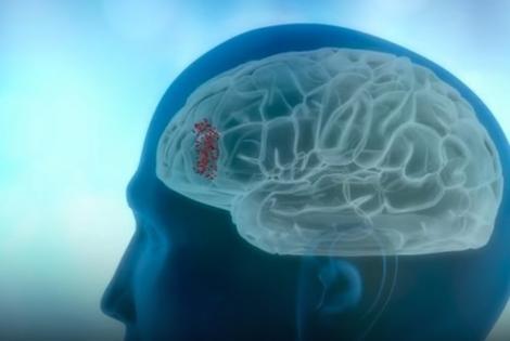 Zagađenje šteti i mozgu