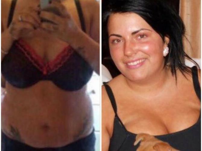 Svi su me OGOVARALI jer sam u trudnoći smršala 45 kilograma: Kada vide kako sada izgledam, ZANEME