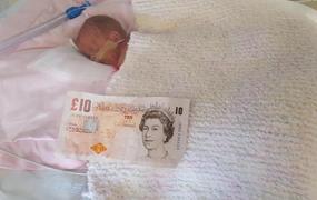 ... Hónapokig küzdöttek az életéért  egy 10 fontosnál is kisebb volt  születésekor a kisbaba - Galéria ... 526bb6ed5f