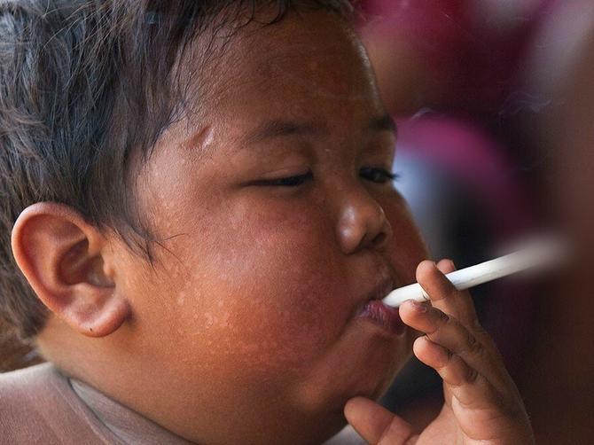 Sa dve godine je pušio dve kutije cigareta dnevno: Evo šta Ardi danas radi