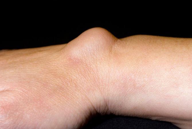 Ovako natečeni zglob je gotovo siguran znak da je u pitanju ganglion