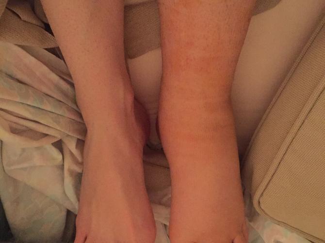 U trudnoći joj je otekla noga i danas izgleda ovako: Korak težak 13 kilograma!