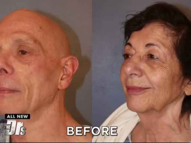 On ima 74, ona 77 godina: Zaljubili su se i rešili da se HIRURŠKI PODMLADE - pogledajte rezultate