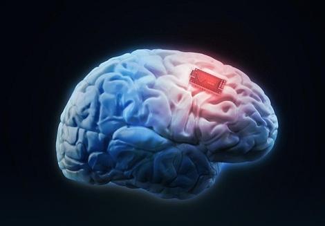 Zahvaljujući elektrodama u mozgu, Džoni Rej je snagom misli mogao da pokreće kursor na ekranu i tako komunicira