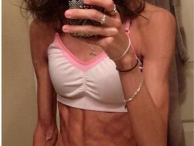 Sati su je delili od smrti, imala je samo 27 kilograma, a sada izgleda ovako