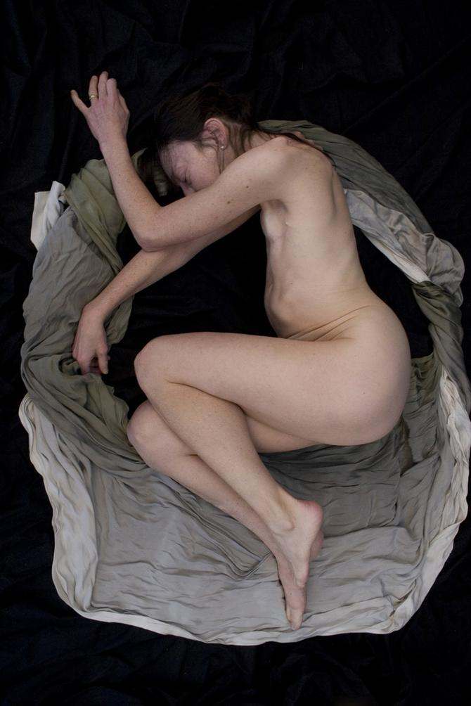Snažne slike pokazuju sve užase ove bolesti, i sve lepote žena koje su se izborile