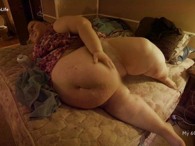 Imala je 330 i uspela je da smrša 172 kilograma: Gojaznost nije najstrašniji deo njene priče!