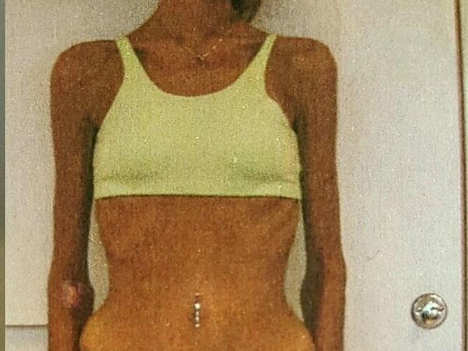 Imala sam 30 kilograma i nije mi bilo do života: A onda sam rešila da sve promenim!