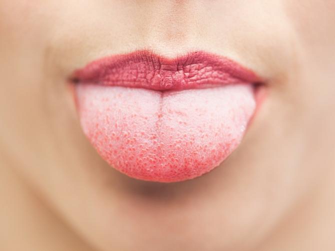 Ako je vaš jezik BEO I DEBEO, trebalo bi da obratite pažnju na zdravlje!
