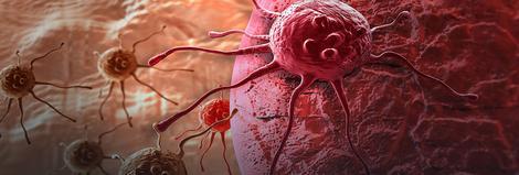 Ćelije raka