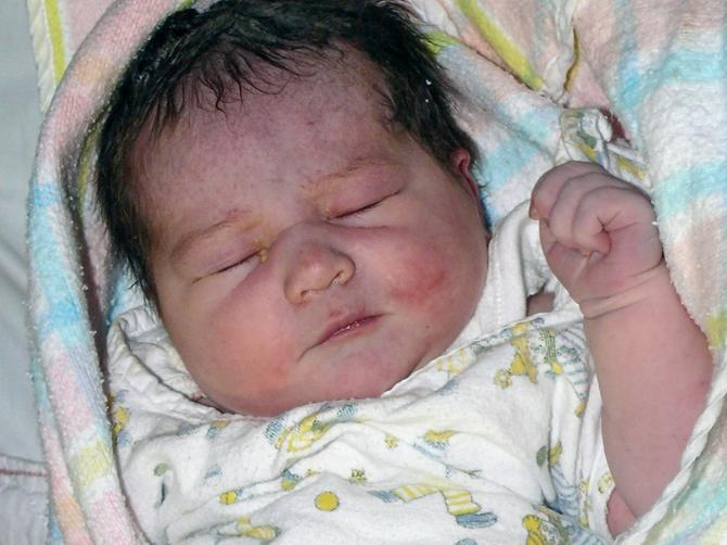 Kada sam rodila ćerku, znala sam da nešto nije kako treba: Lekari su rekli da nema načina da joj SPASU LICE, a onda se desilo OVO