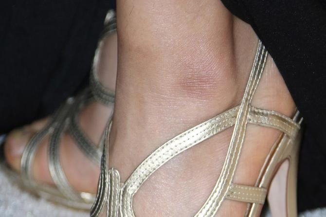 Strahote sa stopalima koje su poznati priredili: Bolje da ne nose ovakvu obuću!