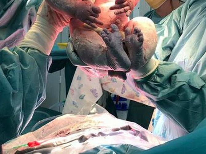 Oborila rekord: Džinovska beba zaprepastila lekare, a kad je vidite, I VAS ĆE