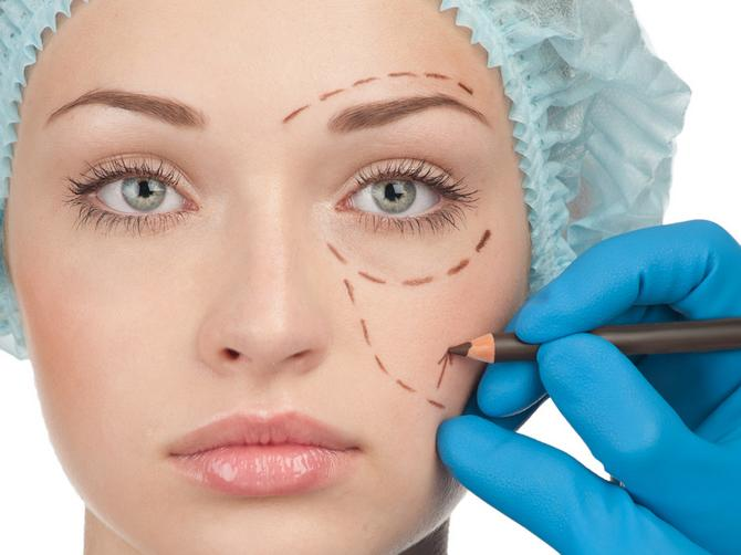 Koliko godina s lica zaista može da skine plastična hirurgija?
